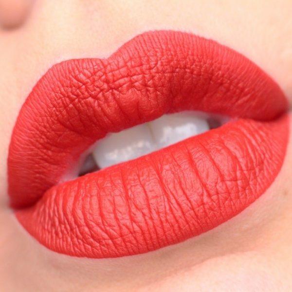 Ustnice